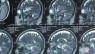 ASCO 2014: Nowotwory ośrodkowego układu nerwego
