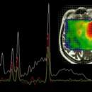 Spektroskopia MRS