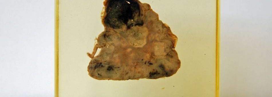 Wznowa glejaka – zastosowanie radioterapii stereotaktycznej
