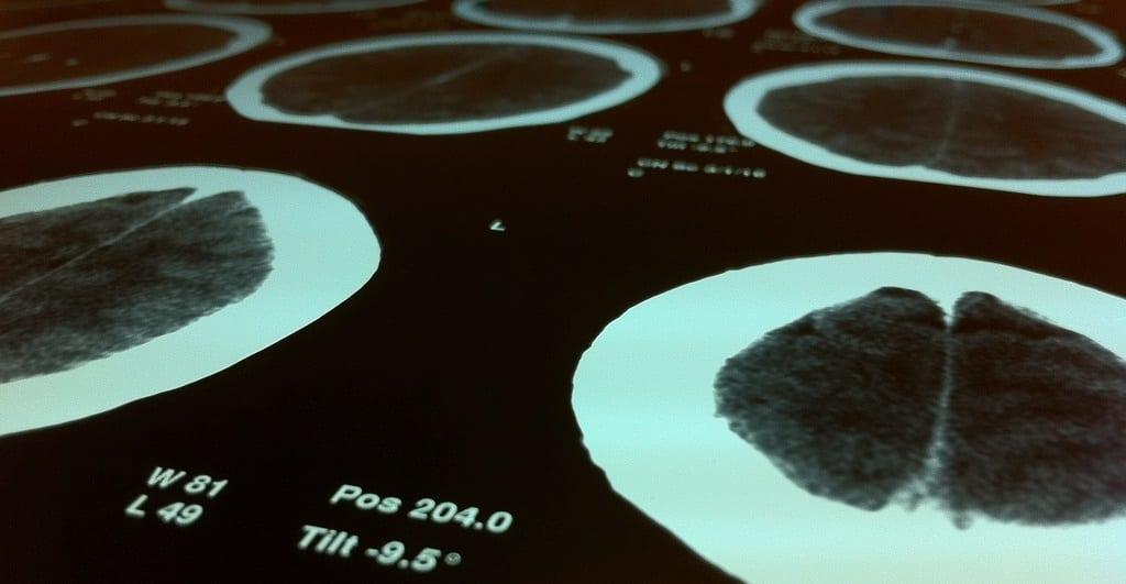 radiografia mózgu, guzy mozgu, rak mózgu