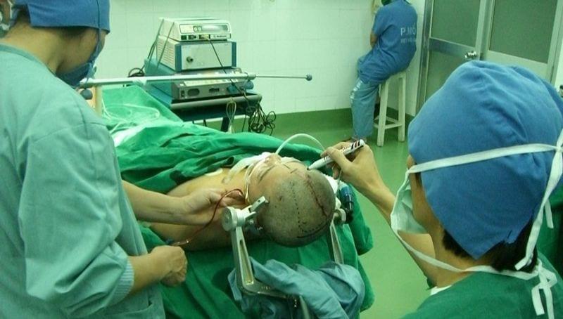 oponiak mózgu - objawy, leczenie guza